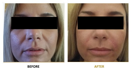 BEFORE-AFTER-EN-HYALURONIC-01