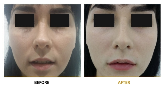 BEFORE-AFTER-EN-HYALURONIC-02