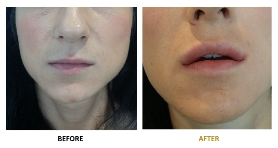 BEFORE-AFTER-EN-HYALURONIC-03