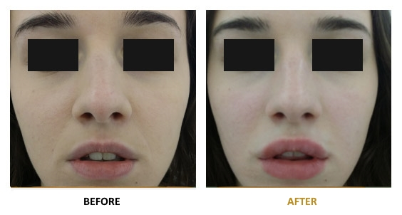 BEFORE-AFTER-EN-HYALURONIC-04