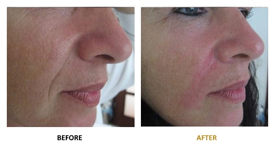 BEFORE-AFTER-EN-HYALURONIC-07