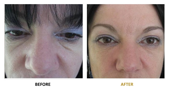 BEFORE-AFTER-EN-HYALURONIC-09