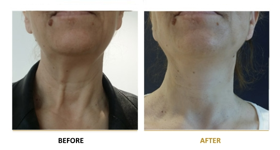 BEFORE-AFTER-EN-MINI-LIFT-02