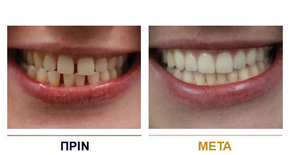 BEFORE-AFTER-dental-lifting-1gr