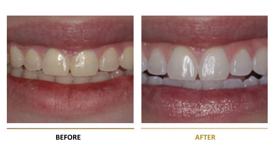BEFORE-AFTER-dental-lifting-2