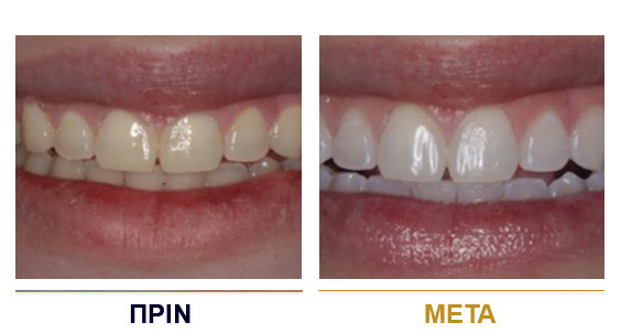 BEFORE-AFTER-dental-lifting-2gr