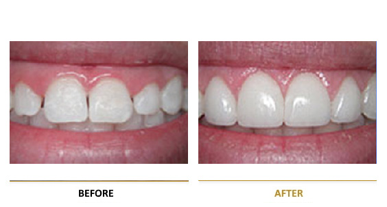BEFORE-AFTER-dental-lifting-3