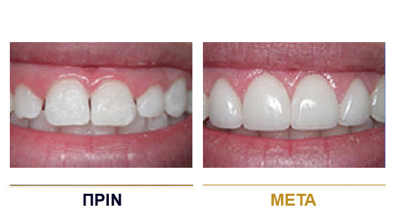 BEFORE-AFTER-dental-lifting-3gr