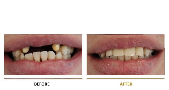 BEFORE-AFTER-dental-vf-1