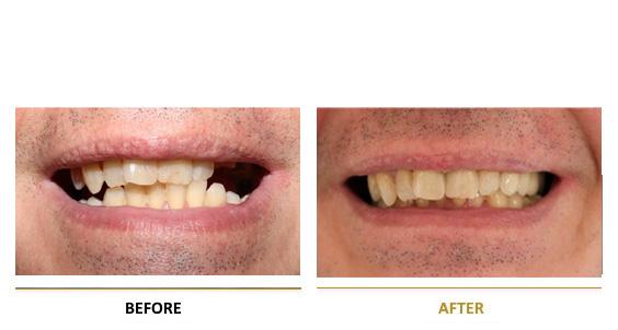BEFORE-AFTER-dental-vf-2