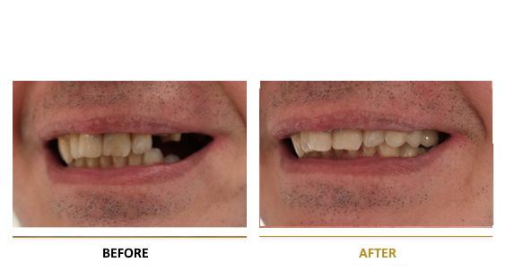 BEFORE-AFTER-dental-vf-3