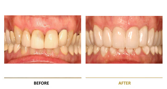 BEFORE-AFTER-leykansi-2-en