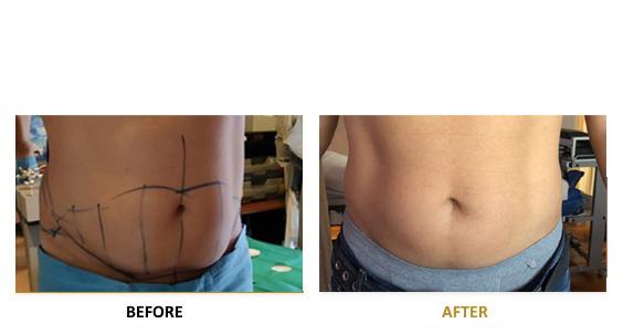 smart-lipo-vf-laser-clinics-before-after-05-en