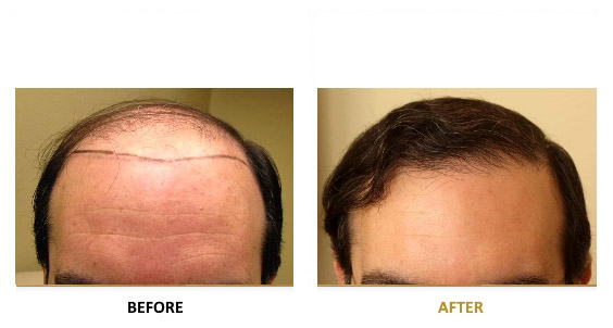 transplantation-before-after-02