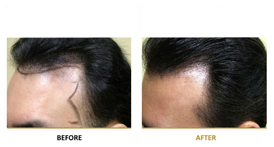 transplantation-before-after-03