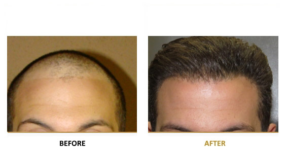 transplantation-before-after-04