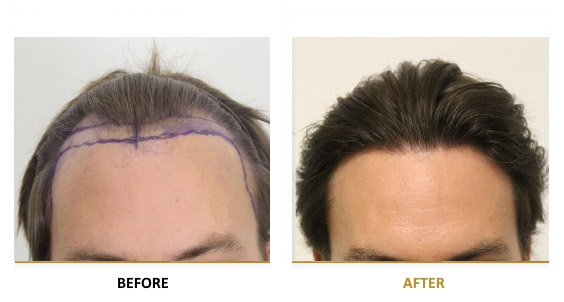 transplantation-before-after-05