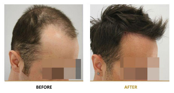 transplantation-before-after-06