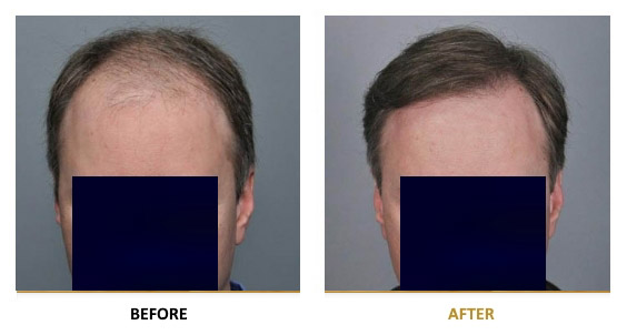 transplantation-before-after-07