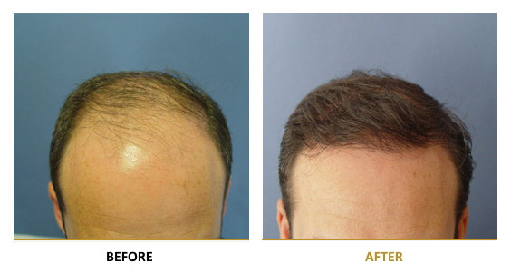 transplantation-before-after-08