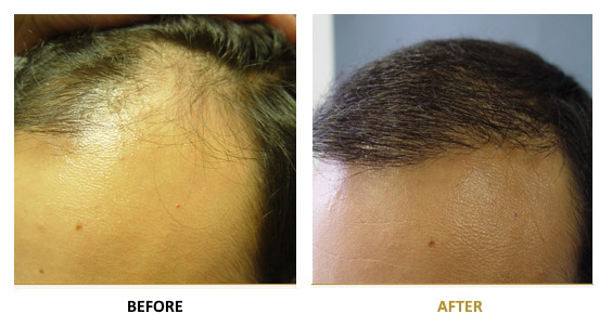 transplantation-before-after-09