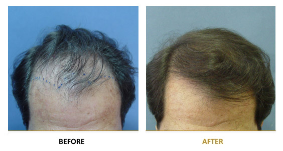 transplantation-before-after-10