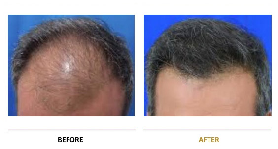 transplantation-before-after-11