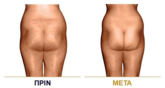 vf_laser_clinics_lpg_lipomassage-02