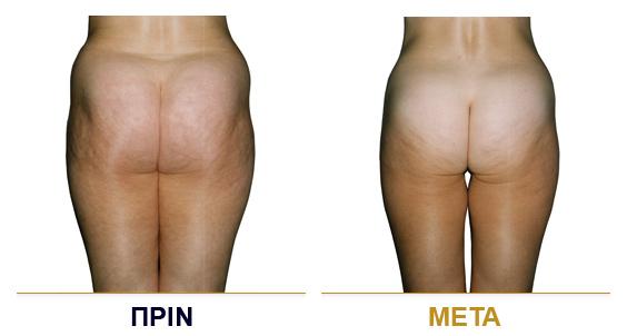 vf_laser_clinics_lpg_lipomassage-03
