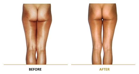 vf_laser_clinics_lpg_lipomassage-05EN