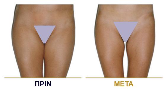 vf_laser_clinics_lpg_lipomassage-06