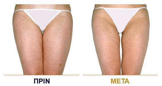 vf_laser_clinics_lpg_lipomassage-07