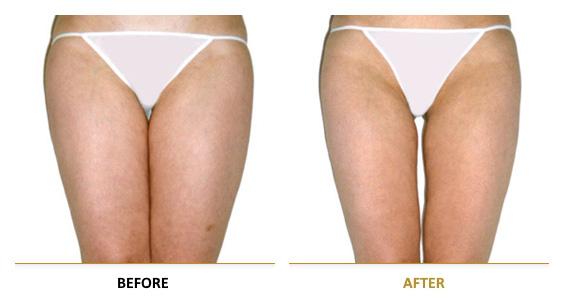 vf_laser_clinics_lpg_lipomassage-07EN