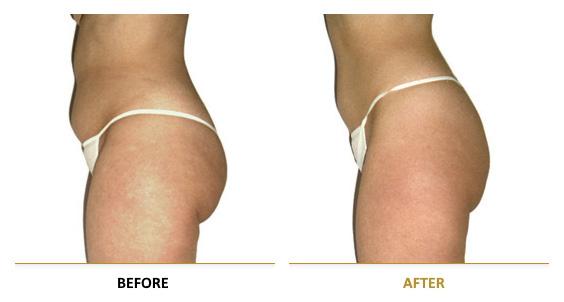 vf_laser_clinics_lpg_lipomassage-08EN