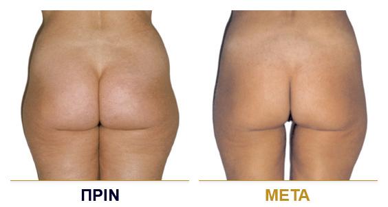 vf_laser_clinics_lpg_lipomassage-09