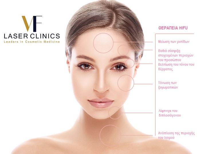 hifu_vf-laser-clinics
