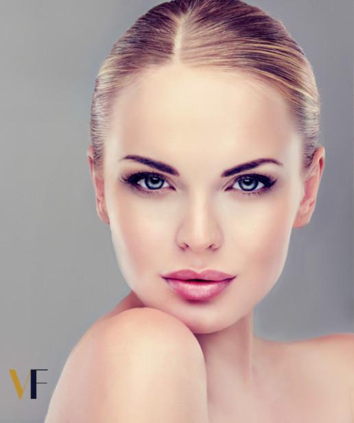 VF Laser Clinics - Θεραπεία Vivace 3D ΟΓΚΟΣ & ΣΥΣΦΙΞΗ ΠΡΟΣΩΠΟΥ