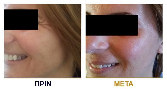 botox-prin-met11