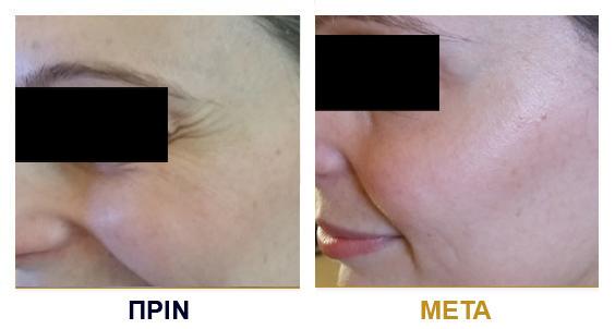 botox-prin-met12