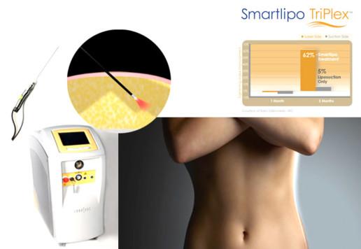 smart-lipo-lipoanarrofisi